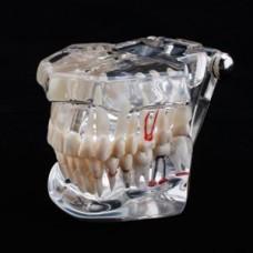 Модель челюсти прозрачная, с разными заболеваниями, имплантами. Китай